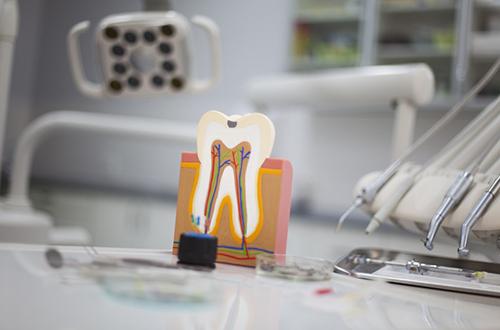 dentista-foligno-spello-endodonzia-01
