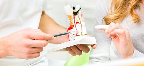 dentista-foligno-spello-endodonzia-02