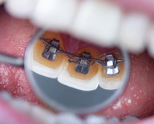 dentista-foligno-spello-ortodonzia-01