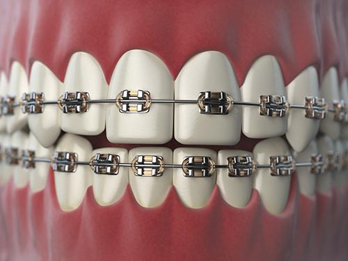 dentista-foligno-spello-ortodonzia-02