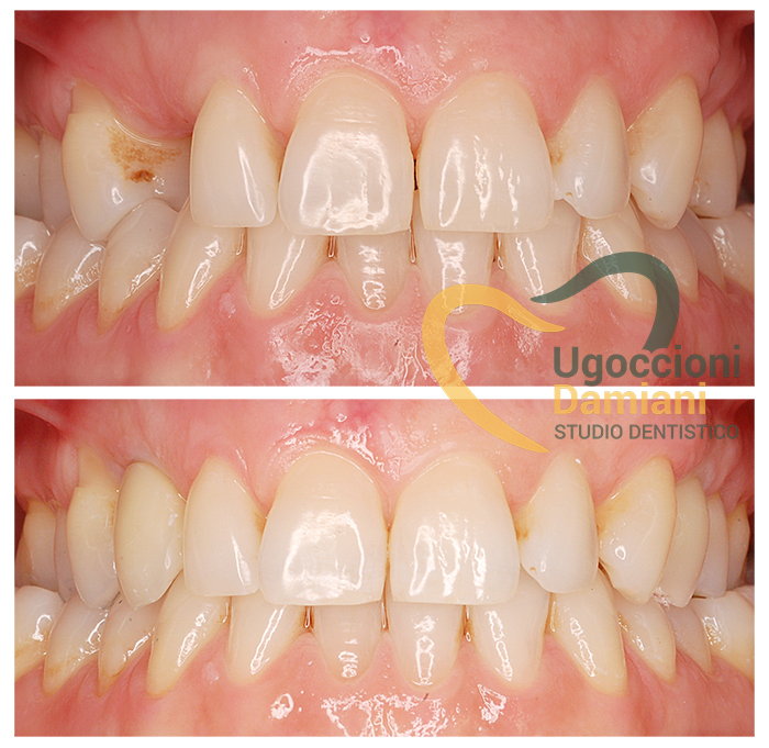 implantologia-tradizionale-caso-Speranza2