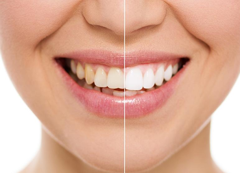 sbiancamento_denti_bianchi-spello